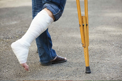 Person with a cast and crutches