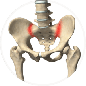 Joint dysfunction