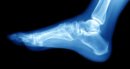 x-ray of foot and ankle