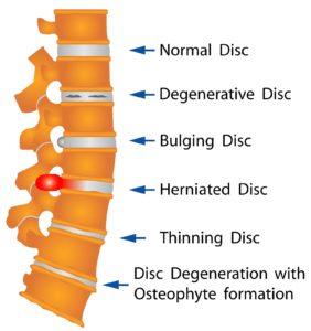 Spinal diagram