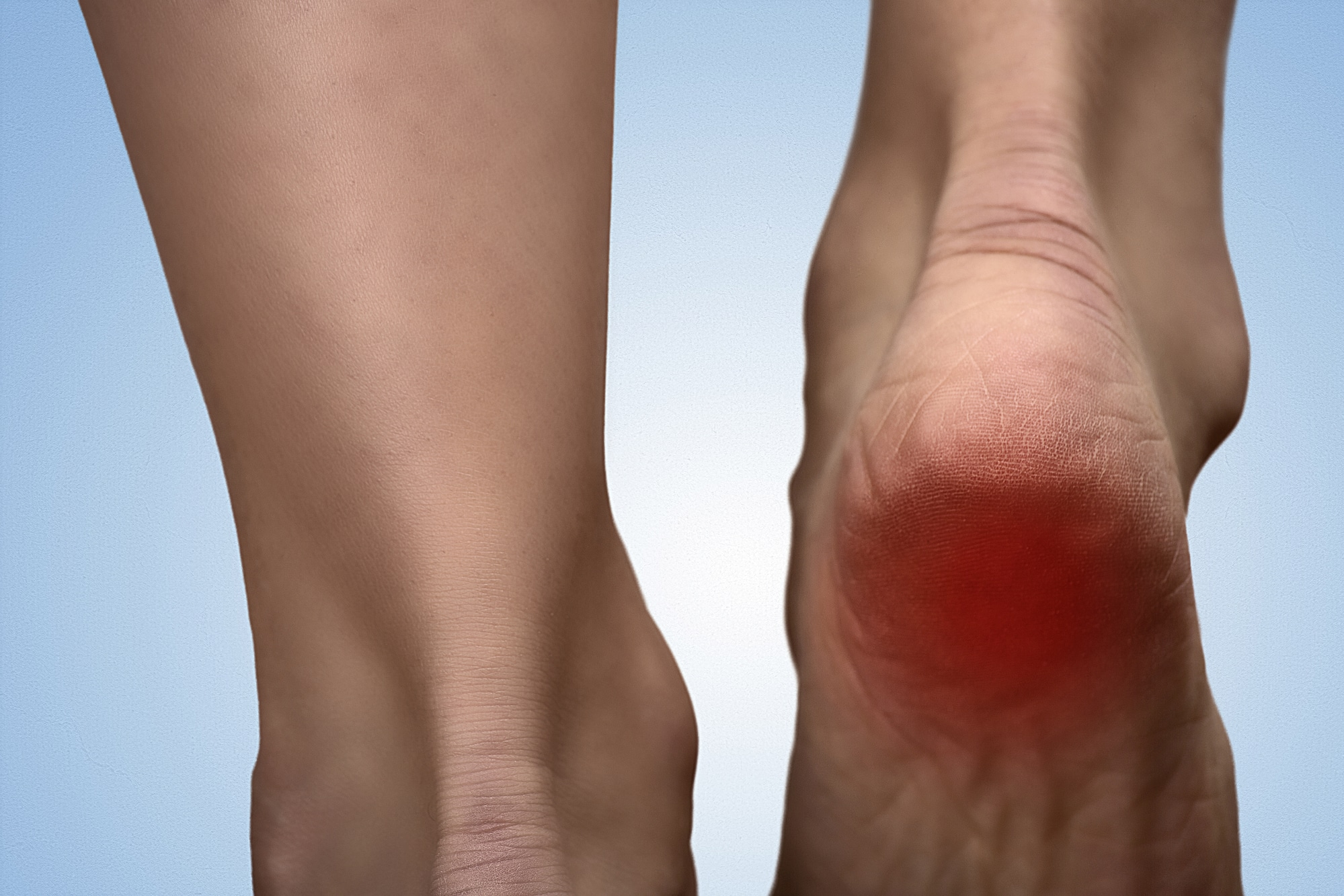 Painful heel with red spot on woman's foot. Arthritis. Tarsal tunnel syndrome concept. Heel pain in women. Pain concept