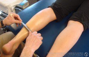Graston physical therapy technique