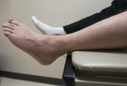 Ankle Pain,Broken Foot, Sprained Ankle, Fractured Bone in Doctor's Exam Room
