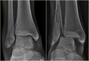 3 of the Most Common Causes of Ankle Pain and Swelling