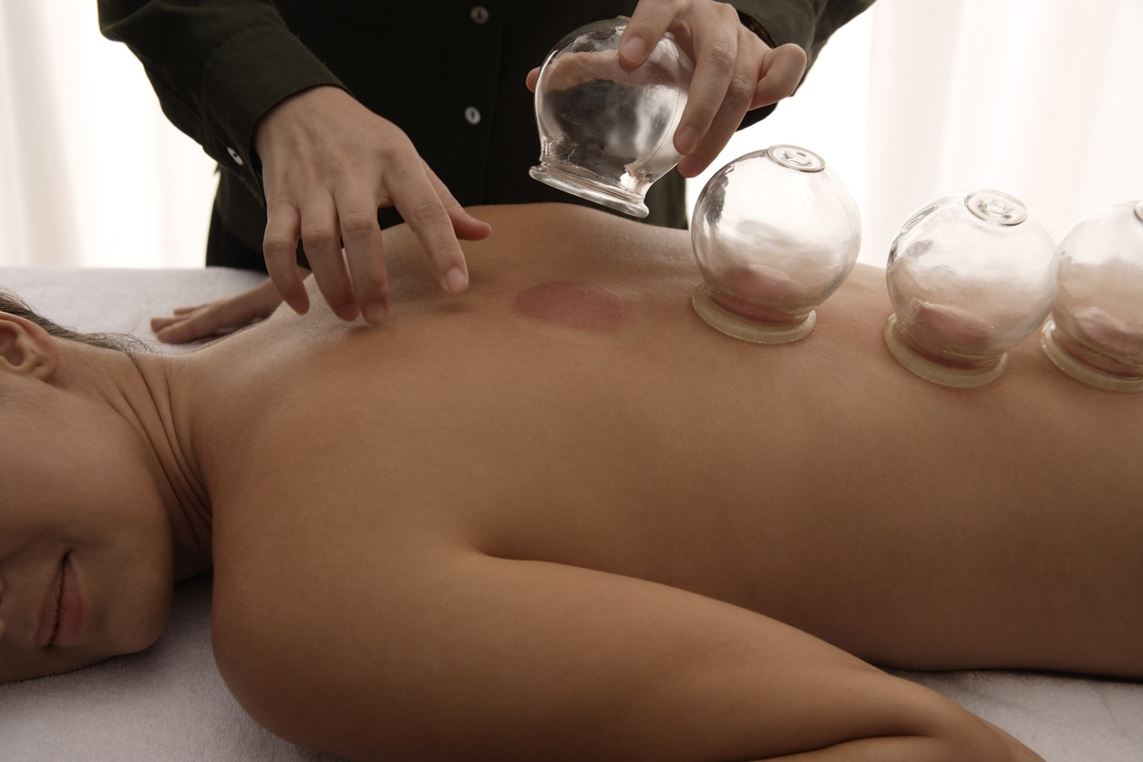 therapist removing cups from cupping treatment