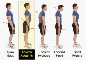 Guide to posture issues