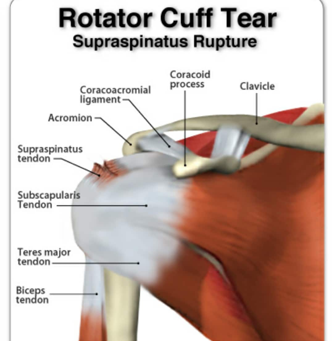 Diagram Of Rotator Cuff Torn Rotator Cuff  Surgery Needed A Long Road Ahead     Elite Fts
