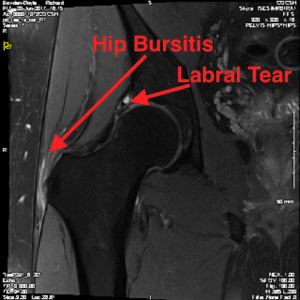Hip bursitis and labral tear