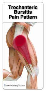 Trochantericc bursitis pain pattern