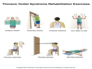 Thoracic outlet syndrome rehabilitation exercises