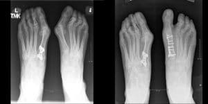 X-ray of foot bunions