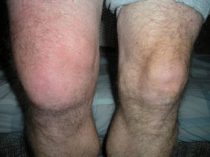 Stages of healing after a knee injury