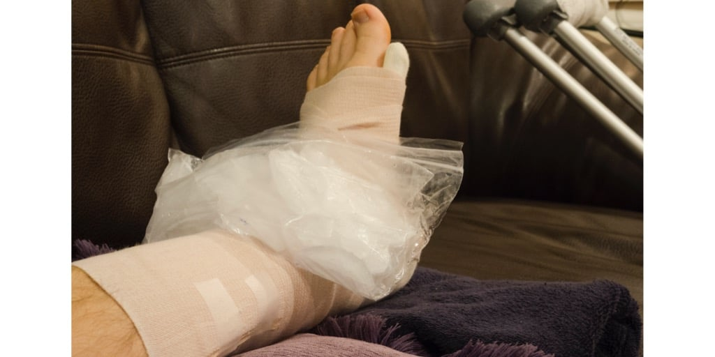 icing injury: broken fractured or sprained foot or ankle in cast