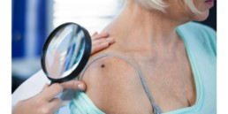 doctor looking at a mole on a senior woman's shoulder looking for signs of skin cancer.