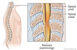 Stenosis graphic