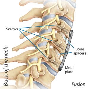 Cervical fusion diagram