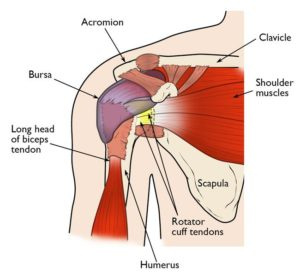 Signs of rotator cuff tendonitis